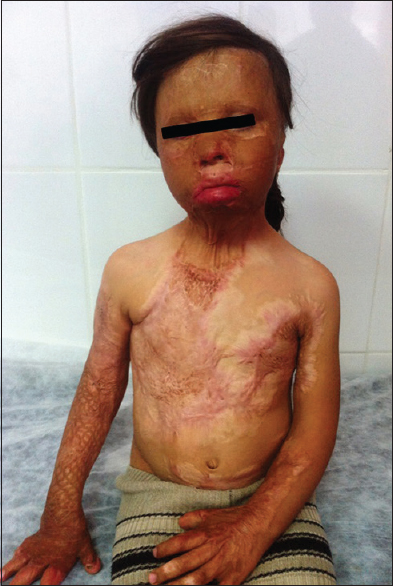Figure 1: An 8-year-old girl with severe burn injuries in the head-neck region due to an air raid 2 years ago. Her view after serial operations during follow-up period