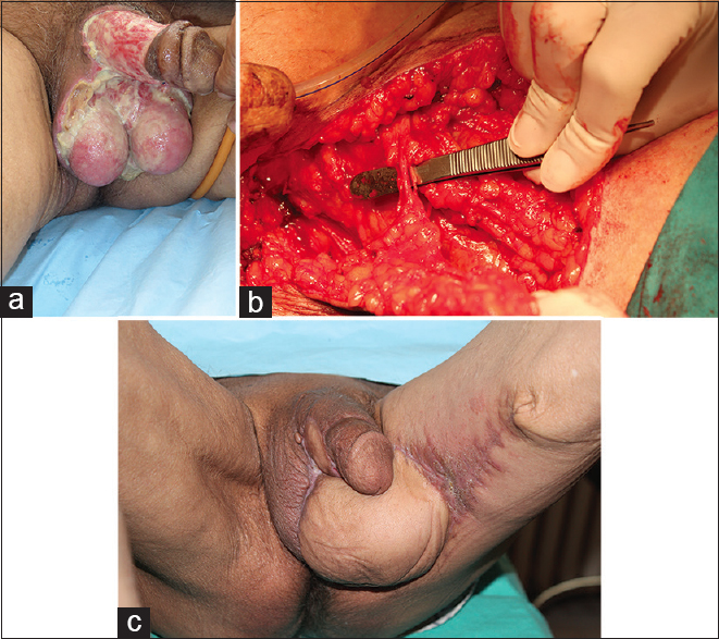 Figure 2: (a) Fully exposed testes of a patient with Fournier's gangrene after serial debridement. (b) Perioperative view of the flap. (c) Complete recovery of the scrotal defect using a medial circumflex femoral artery perforator flap, primary closure of donor area, and neo-scrotum at 6 months postoperatively