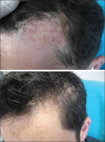 Figure 3: Burn alopecia with a duration of 20 years before hair transplantation and at postoperative 22 months following hair transplantation by using FUT technique in case 3