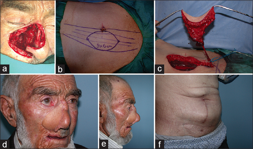 Figure 2: Case 3: 69-year-old male had the diagnosis of metatypical carcinoma located on the right side of the nose and maxilla. Free muscle sparing-vertical rectus abdominis muscle flap, which was 9 cm × 6 cm in size, was planned for reconstruction. (a) Appearance of the defect. A serious dead space appeared after resection of the tumor. (b) Design and marking of the muscle sparing-vertical rectus abdominis muscle flap. (c) Elevation of the flap. (d) Postoperative oblique appearance of 1 year. (e) Postoperative lateral appearance. (f) Postoperative donor site appearance