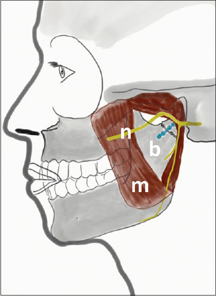 Figure 2: Illustration of the relevant anatomical structures: m-masseter muscle; b-the mandible; n-the masseter muscle
