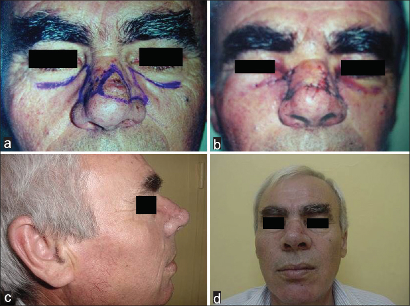 Figure 3: A 47-year-old male patient with nasal dorsal basal cell carcinoma: (a) preoperative view, (b) view after defect closure, (c) lateral view in the postoperative 10<sup>th</sup> month, and (d) front view in the postoperative 10<sup>th</sup> month