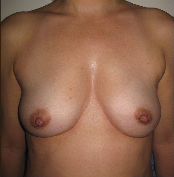 Figure 10: Case-5: 35-year-old female with left tubular carcinoma