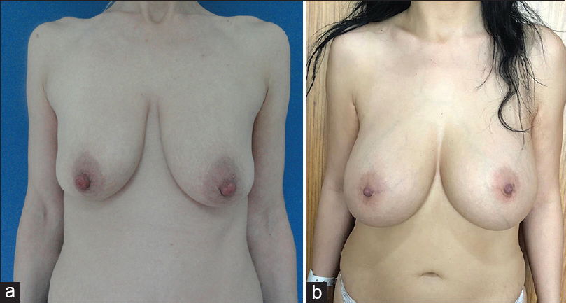 Figure 1: (a) Preoperative appearance of a 28-year-old patient who was found to be pregnant. (b) Postoperative (9 years) appearance of a 28-year-old patient who was found to be pregnant