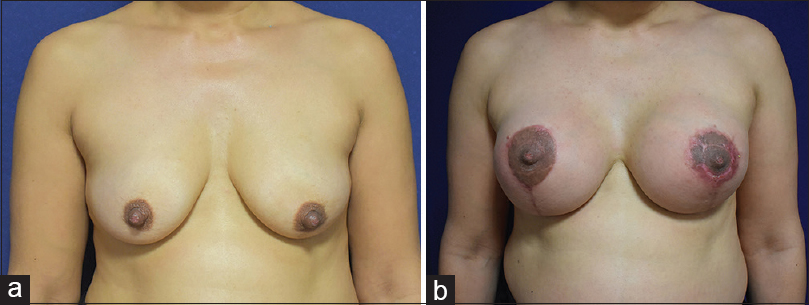 Figure 3: (a) A 44-year-old patient who underwent augmentation mastopexy. Preoperative nipple larger than normal. (b) Postoperative 6-month image. The right areola has healed completely; depigmentation and scarring can be observed on the left side. The nipple spontaneously reduced in size