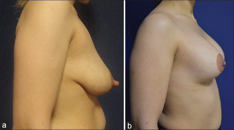 Figure 4: (a) Preoperative appearance of a 34-year-old patient who underwent augmentation mastopexy. Nipple appears larger than normal. (b) Postoperative appearance of a 34-year-old patient who underwent augmentation mastopexy. Nipple has returned to normal size 1.5 years after surgery