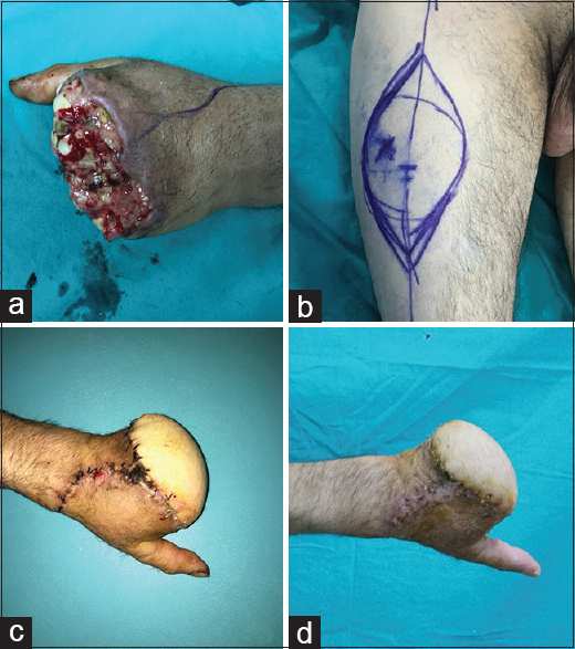 Figure 5: A 35-year-old male patient, left metacarpal hand image one week after crush injury (a). Preoperative planning of anterolateral thigh flaps flap (b). Postoperative 2nd week view (c). Postoperative 1<sup>st</sup> month view (d)