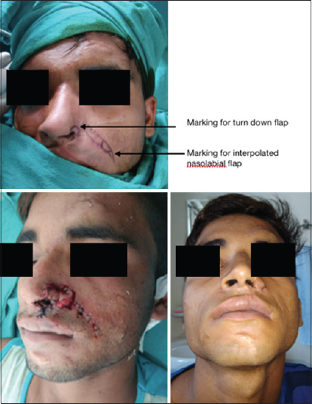 Figure 4: Top showing flap marking, bottom left-showing postoperative photograph after first stage, bottom right showing final result for case 10