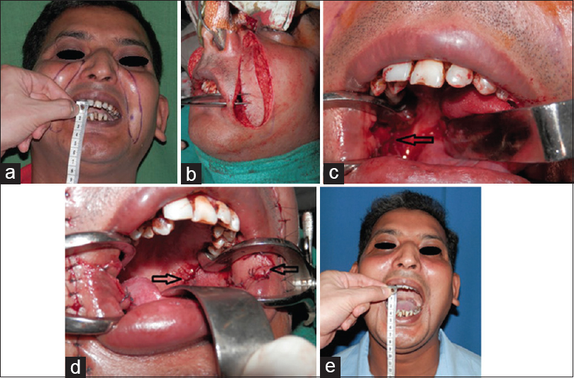 Figure 1: (a) A 30-year-old male with 4-mm preoperative inter-incisal distance, with bilateral nasolabial flaps marked. (b) Flap elevation and flap transfer through a tunnel. (c) The intraoral defect after excision release. (d) Intraoperative photograph of the flap inset with an arrow showing the proximal and distal ends of the flap. (e) A follow-up photograph at 20 months with an improved interincisal distance of 40 mm, with well-hidden scars in nasolabial folds